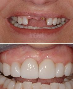 Benefits of dental implants? Improved health, appearance and confidence!