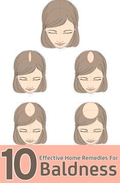 10 Effective Home Remedies For Baldness