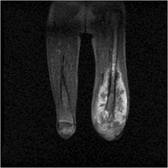 Osteosarcoma | Radiology Case | Radiopaedia.org
