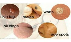 Are you fed up with your skin problems? Do you want to get rid of skin tags, moles, warts, oil clogs, blackheads or age spots easily? Then you are just one step away because we bring the best solution or remedies related to more than 3000 skin problems. Mole Removal, Skin Tag Removal, Age Spot Removal, Molluscum Pendulum, Get Rid Of Warts, Remove Warts, Clogged Pores, Clogged Arteries, Beauty Hacks