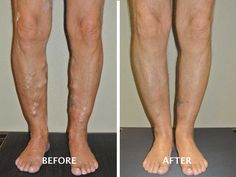 Boise Advanced Vein Therapy, Before And After. Varicose Veins