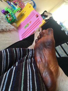 Pés de tigre: Michael Onorati, de Glasgow, compartilhou esta imagem de seu pé direito depois que ele usava uma meia usada por seu parceiro para aplicar tan falso - a imagem tem sido desde então 100.000 vezes  Read more: http://www.dailymail.co.uk/femail/article-4104836/Men-share-hilarious-pictures-feet-stained-deep-brown-reveal-women-lives-use-SOCKS-fake-tanning-mitts.html#ixzz4VUbCPktG  Follow us:  Tiger feet: Michael Onorati, from Glasgow, shared this image of his right foot after he w...