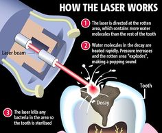 Spaceline Dental Studio is provide painless dental treatment in Mumbai by using Laser Dentistry treatment. Our Erbium laser dental treatment help to remove decay without dental drills and at the same time removes bacteria and disinfects the whole cavity. Dental Facts, Dental Humor, Laser Dentistry, Cosmetic Dentistry, Dental Surgery, Dental Implants, Nose Surgery, Dental Health, Dental Care