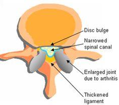 back health, lumbar pain