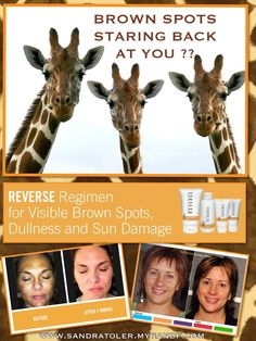 BROWN SPOTS???? REVERSE brown spots, years of sun damage,  dullness and discoloration with  Rodan + Fields® REVERSE REGIMEN!! www.sandratoler.myrandf.com