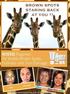 BROWN SPOTS???? REVERSE brown spots, years of sun damage,  dullness and discoloration with  Rodan + Fields® REVERSE REGIMEN!! www.sandratoler.myrandf.com