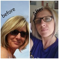 Derma Roller System, 5 Months, South Africa, Beauty Products, Facial, Skincare, Facebook, Beauty, Facial Treatment