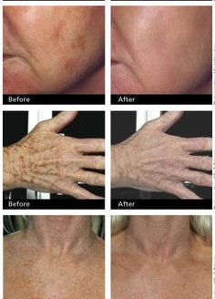 Get Rid of Those Nasty Age Spots! ,