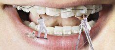 LS1 Dental Services at Leeds, West Yorkshire . Fore details Visit: http://www.ls1dental.co.uk/
