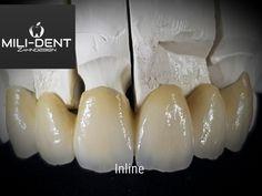 Dental Photos, Dental Photography, Dental Anatomy, Dental Technician, Teeth Shape, Dental Art, Dental Bridge, Dental Services, Dentistry