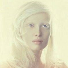 White Albino as beautifull as her model contemporaries