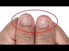 Lütfen GEÇ Olmadan Kontrol Edin! - Tırnaklarına bak hastalığını öğren - YouTube Youtube, Lifestyle, Youtubers