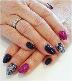 Sept nail selection