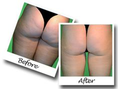 Cellulite Free Forever: How I Ate My Way to a Cellulite-Free Body in Just 12 Weeks