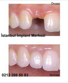 implant diş fiyatları http://www.implantdisfiyati.org/