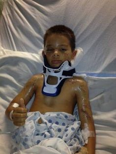 another child victim (September 2013)  hospitalized with multiple injuries...