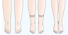 Edema, or water retention, is the condition of accumulated fluid within the tissues and cavities or the circulatory system. It is common before or during pregnancy and leads to swellings in the legs, feet, ankles, and hands. Edema is also common in inactive people, those who are on long-term medications, bedridden or people with sedentary […]