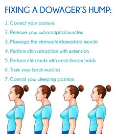 If left untreated, Dowager's hump can lead to other serious problems. You can fix it by correcting muscular imbalances and changing some of your habits. Neck And Shoulder Exercises, Posture Exercises, Shoulder Workout, Shoulder Posture, Fitness Diet, Yoga Fitness, Health Fitness, Posture Correction Exercises, Forward Head Posture Correction