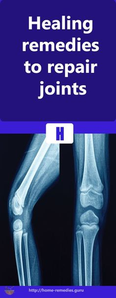 Healing remedies to repair joints #remedy #health #healthTip #remedies #beauty #healthy #fitness #homeremedy #homeremedies #homemade #trends #HomeMadeRemedies #Viral #healthyliving #healthtips #healthylifestyle #Homemade