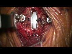 Cervical Artificial Disc Replacement (LDR Mobi-C)