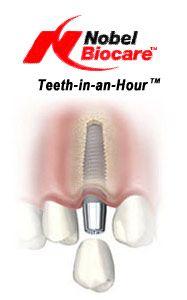 Implantati / Nobel Biocare Active implantat | ZUBNI IMPLANTATI ...