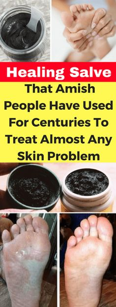 Healing Salve That Amish People Have Used For Centuries To Treat Almost Any Skin Problem – Today Health People