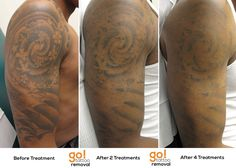 Stellar results on this half sleeve after 4 laser tattoo removal treatments, but the client is getting a very specific cover-up so we've done a 5th treatment after this photo to help fade the remaining darker areas.  They are as pleased as we are with the progress and can't wait till early next year to see the cover-up!
