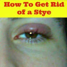 Most bumps on the eyelid are styes. Learn the most effective DIY home remedies for styes. Getting rid of a stye is easier than you think. Select the most suitable treatment from the list...