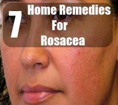Natural Acne Remedies DIY Rosacea Remedies ~ 7 Home Remedies For Rosacea Home Remedies For Rosacea, Natural Acne Remedies, Pimples Remedies, Hair Remedies, Natural Cures, Natural Acne Treatment, Scar Treatment, Acne Rosacea, The Secret
