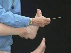 Die Parkinson-Erkrankung (Morbus Parkinson) ist die am häufigsten auftretende neurologische Bewegungsstörung. In Deutschland sind schätzungsweise etwa 400.000 Menschen betroffen. Der Morbus Parkinson ist eine chronische Erkrankung und betrifft hauptsächlich ältere Menschen, kann aber auch schon um das 40. Lebensjahr oder noch früher auftreten. Die typischen motorischen Symptome wie Zittern (Tremor), Muskelsteifigkeit (Rigor) und Bewegungsverlangsamung (Bradykinese) sind im Wesentlichen…