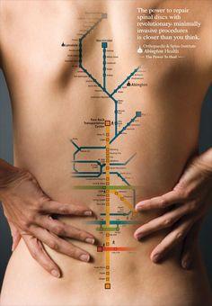 Alexis..Spinal Disc Subway Advertising by Abington Memorial Hospital