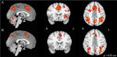 MRI scans show brain activation during executive functioning testing. The top row, row A, is of musically trained children. The bottom row, row B, is of untrained children. There's more activation in the musically trained children. (Courtesy Nadine Gaab)