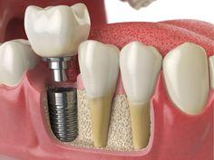 Dental Veneers Process - Local Dentist Search