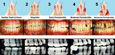 Keep those chompers looking awesome. Brush them twice and day and floss them....you don't want Periodontal disease!