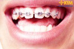 Chỉnh nha không nhổ răng – Giải pháp hiệu quả bảo tồn răng thật