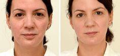 Naneste jedlou sodu pod oči a výsledek bude ohromující! Anti Aging Mask, Anti Aging Tips, Anti Aging Skin Care, Best Lightening Cream, Getting Rid Of Scars, Face Change, Natural Exfoliant, Good Skin, Healthy Skin