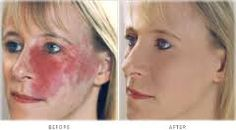 Image result for paramedical makeup Basic Makeup, Makeup Basics, Camouflage Makeup, Normal Skin