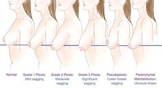 How To Lift Your Breasts Naturally?