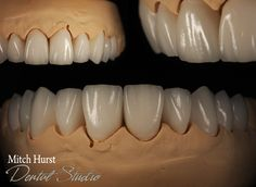 smile makeover, dental, cosmetic, beautiful. hurstdentalstudio.com