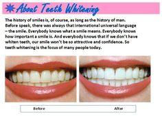 http://reviewscircle.com/health-fitness/dental-health/natural-teeth-whitening/