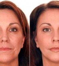 Dysport: A Botox Alternative « Total Skin & Beauty Dermatology Center Shape Magazine, Perfect Makeup, Pretty Makeup, Perfect Skin, Huile Anti Ride, Face Home, Les Rides, Mascara Tips, Dermal Fillers