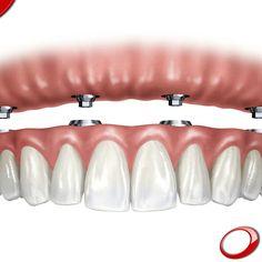 """El concepto """"All on 4"""" es un método de colocación de Implantes Dentales que permite a los desdentados totales, con problemas de maxilar, la rehabilitación a través de la colocación de implantes sin recurrir a injertos de hueso. Ésta es una solución poco invasiva y presentada como la mejor en lo que respecta a la sustitución de la arcada completa en que los pacientes con poca cantidad y calidad de hueso pueden tener prótesis fijas sin necesitar el transplante de hueso. Los pacientes que…"""