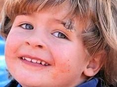 Preparing for facial stitches: a parent asks