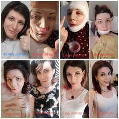 Post with 36262 views. Here's my FFS recovery timeline (only about 4 more months to go! Transgender Mtf, Transgender People, Ffs Surgery, Facial Feminization Surgery, Reiss, Viral Videos, Timeline, Trending Memes, Feminism