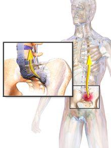 Ankylosing spondylitis - Wikipedia, the free encyclopedia