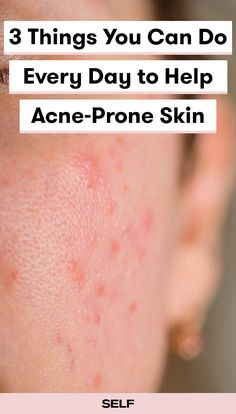 If you have acne-prone skin, incorporate these tips into your skin care routine to help reduce the appearance of redness and bumps daily. Exfoliate with acid cleansers, calm your skin with Vitamin C or E-based serums, and if all else fails, try a retinoid. https://www.self.com/story/acne-prone-skin-tips