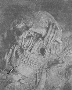 "Primitive Race of Giant Human Neanderthals Uncovered in North America. Photo from, ""The Nephilim Chronicles: Fallen Angels in the Ohio Valley."""