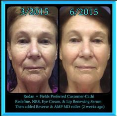 Cathi used Redefine, night renewing serum, eye cream, lip renewing serum. For the last two weeks she used Reverse and Amp MD Roller.
