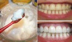 Kokosnussöl kann fast alle Zahnprobleme lösen … und dir viel Geld sparen