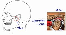 TMJ Joint Jaw Pain, Neck Pain, Muscles Of The Face, Jaw Clenching, Referred Pain, Muscle Disorders, Neck Problems, Trigeminal Neuralgia, Muscle Strain